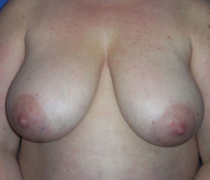 Breast Lift Before and After Pictures Washington, DC