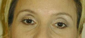 Brow Lift Before and After Pictures Washington, DC