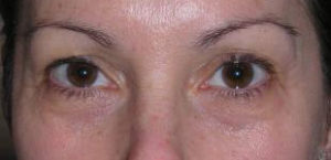 Eyelid Surgery Before and After Pictures Washington, DC