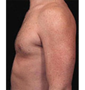 Male Breast Reduction Before and After Pictures Washington, DC