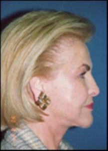 Neck Lift Before and After Pictures Washington, DC