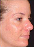 Skin Resurfacing Before and After Pictures Washington, DC