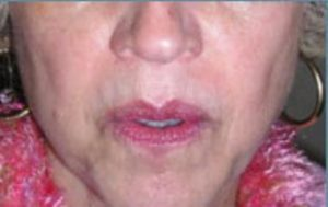 Wrinkle Removal Before and After Pictures Washington, DC