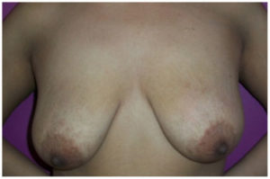 Breast Reduction Before and After Pictures Washington, DC