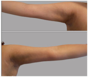 Arm Lift Before and After Pictures Washington, DC