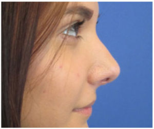 Rhinoplasty Before and After Pictures Washington, DC