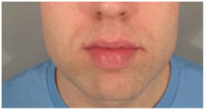 Chin Implants Before and After Pictures Washington, DC