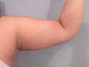 Arm Lift Before and After Pictures in Washington, DC