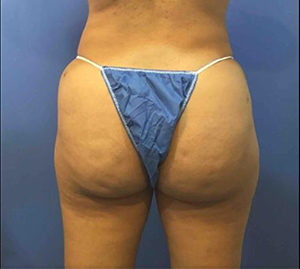 Fat Transfer to Buttocks Before and After Pictures Washington, DC