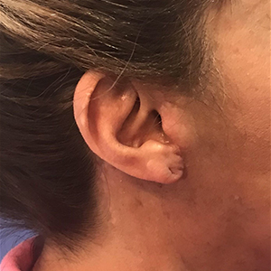 Earlobe Repair Before and After Pictures Washington, DC