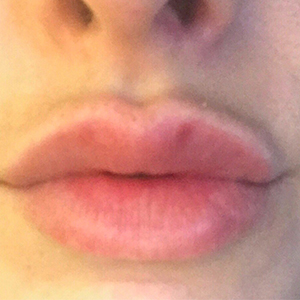 Lip Enhancement Before and After Pictures Washington, DC