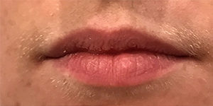 Lip Enhancement Before and After Pictures in Washington, DC