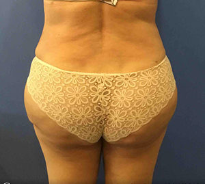 Liposuction Before and After Pictures in Washington, DC