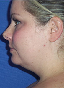 Neck Lift Before and After Pictures in Washington, DC