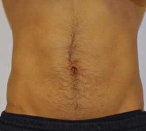 Tummy Tuck Before and After Pictures Washington, DC