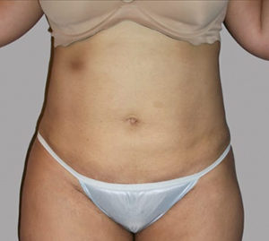 Tummy Tuck Before and After Pictures in Washington, DC
