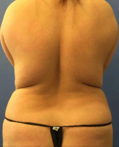 Laser Liposuction Before and After Pictures Washington, DC