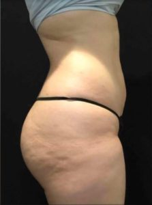 Lipo after photo
