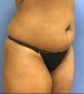 Lipo Before Photo