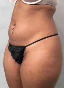 Liposuction Before and After Pictures Washington, DC