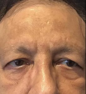 Fractional Laser Before and After Pictures in Washington, DC