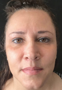 IPL Laser Before and After Pictures in Washington, DC