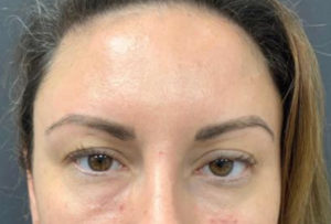 Fillers and Injectables Before and After Pictures Washington, DC