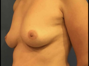 Breast Augmentation Before and After Pictures Washington, DC